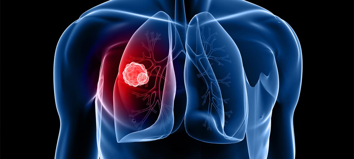 Ehetünk-e úgy, hogy közben a rákos sejteket kiéheztetjük?